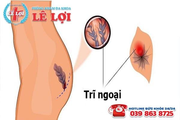 Nhận biết các dấu hiệu bệnh trĩ ngoại