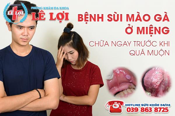 Bệnh sùi mào gà ở miệng - chữa ngay trước khi quá muộn