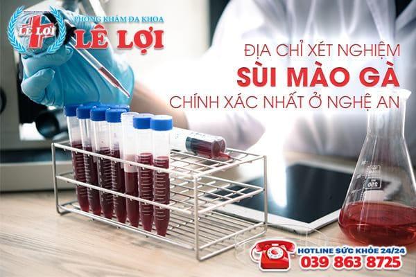 Địa chỉ xét nghiệm sùi mào gà chính xác nhất ở Nghệ An