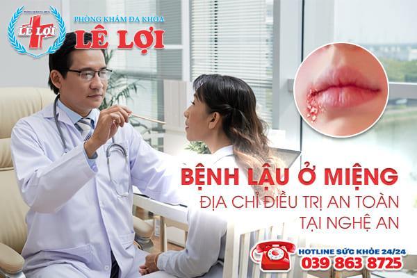 Bệnh lậu ở miệng - Địa chỉ điều trị an toàn tại Nghệ An