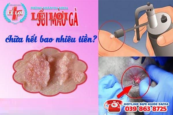 Chi phí chữa bệnh sùi mào gà ở Đô Lương Nghệ An là bao nhiêu?