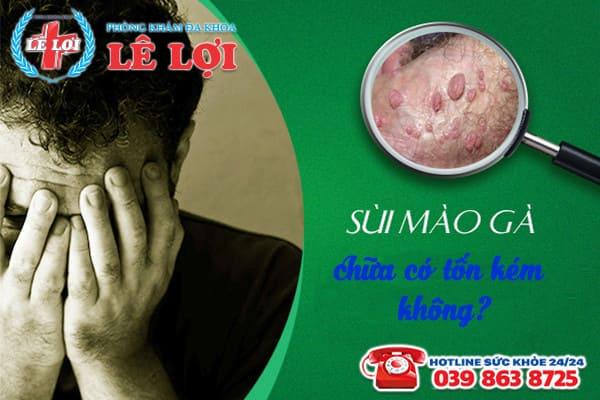 Chi phí chữa bệnh sùi mào gà ở Nam Đàn Nghệ An là bao nhiêu?
