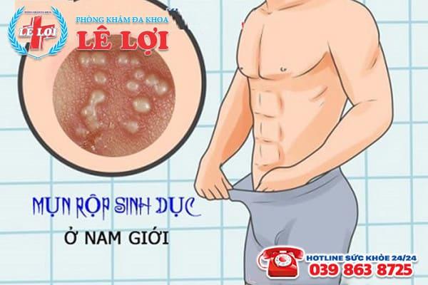 Triệu chứng bệnh mụn rộp sinh dục ở nam giới