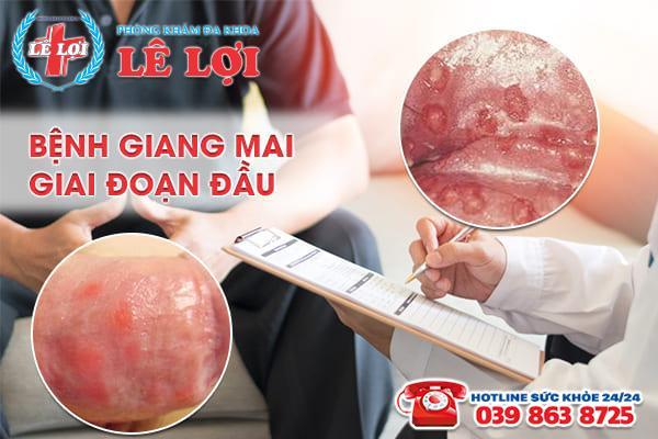 Chữa bệnh giang mai giai đoạn đầu nhanh chóng tại Thanh Hóa