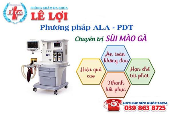 Hỗ trợ điều trị sùi mào gà bằng phương pháp ALA - PDT