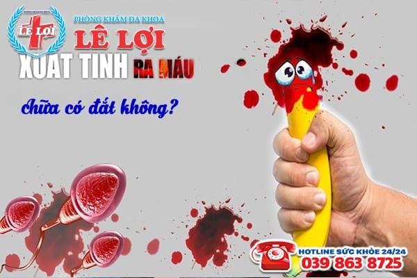 Chi phí chữa xuất tinh ra máu ở Đô Lương Nghệ An có đắt không?