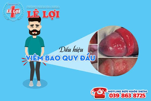 Nhận biết dấu hiệu viêm bao quy đầu ở nam giới thường thấy