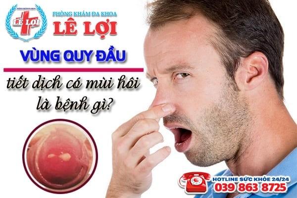 Vùng quy đầu tiết dịch có mùi hôi là bệnh gì?