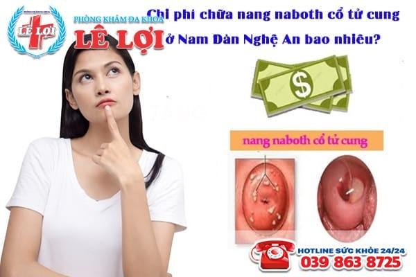 Chi phí chữa nang naboth cổ tử cung ở Nam Đàn Nghệ An