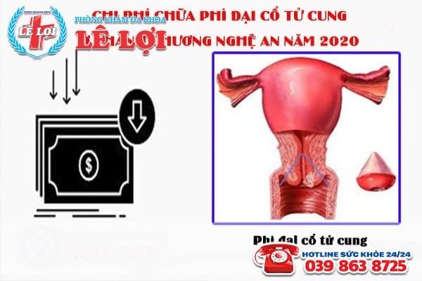 Chi phí chữa phì đại cổ tử cung ở Thanh Chương Nghệ An năm 2020