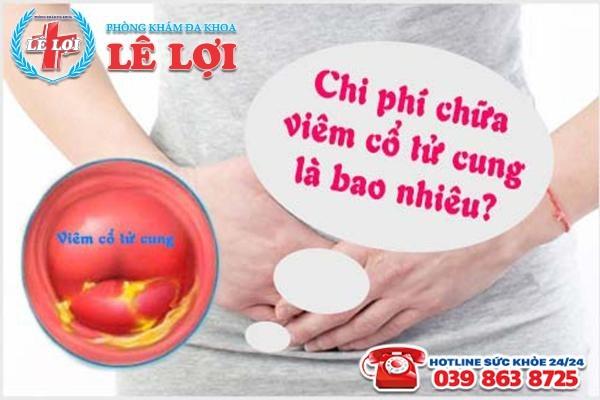 Chi phí chữa viêm lộ tuyến cổ tử cung tại TP Vinh Nghệ An