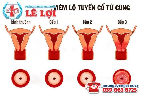 Hình ảnh viêm lộ tuyến cổ tử cung qua các cấp độ