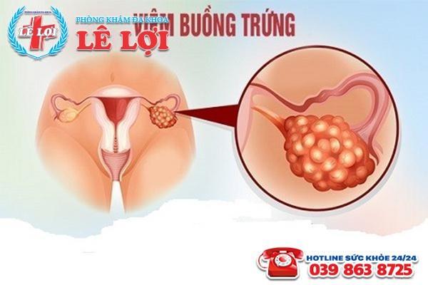 Điều trị viêm buồng trứng ở đâu rẻ nhất tại TP Vinh Nghệ An?
