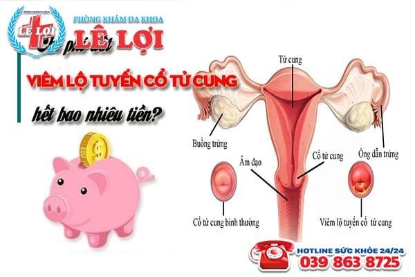 Đốt viêm lộ tuyến cổ tử cung bao nhiêu tiền?