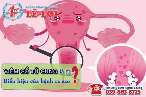 Viêm cổ tử cung là gì? Biểu hiện nhận biết căn bệnh