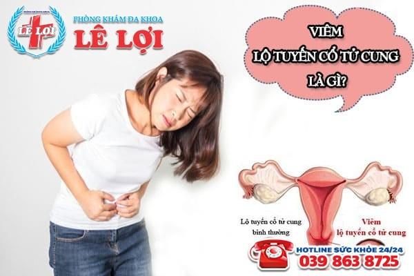 Viêm lộ tuyến cổ tử cung là gì? Tác hại ra sao?
