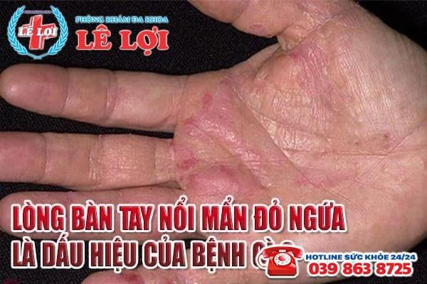 Lòng bàn tay nổi mẩn đỏ ngứa là dấu hiệu của bệnh gì?